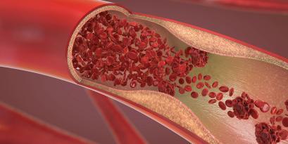 TCAR: A New Alternative for Treating Carotid Artery Disease
