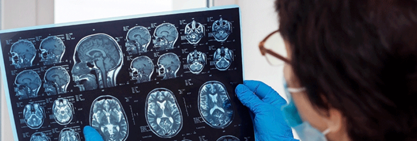 Doctor points out signs of stroke in COVID-19 patient's MRI brain scan.